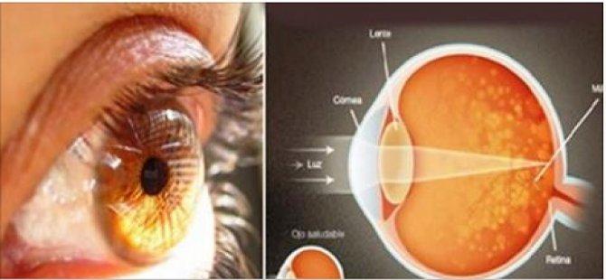 Bu Baharat Gözlerinizde %97 Oranında iyileşme Sağlıyor !