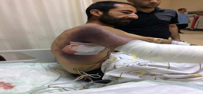 Yılana taşla saldırdı, hastanelik oldu: Hayati tehlikesi var