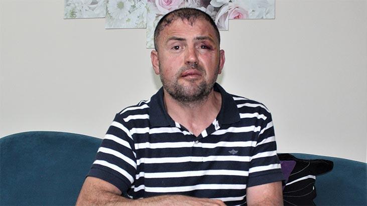 Yüzde 92 engelli Gaziyi 'ayaklarını uzattı' diye döven 3 saldırgan serbest