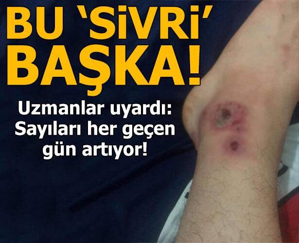 Sakarya'nın Sapanca ilçesinde görüldü, İstanbul'da da şikayetler arıyor! Bu sivrisinek başka sivrisinek