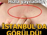 İstanbul'da dikkat çeken artış: Yayılabilir