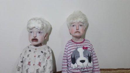 albino-kardesler-yardim-bekliyor-11259121.jpeg